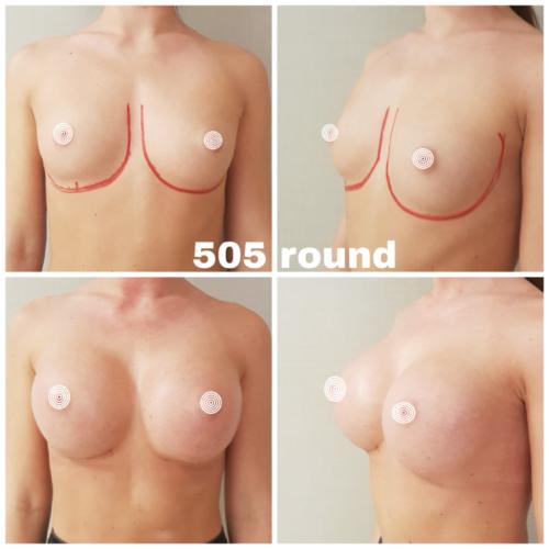 Mellnagyobbítás, Brustvergrösserung